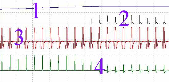 Зарядка конденсатора и напряжение катушки