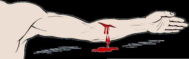 Артериальное кровотечение картинки